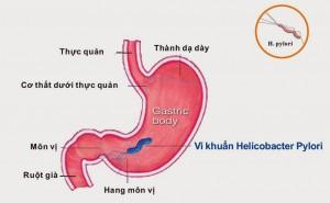 đau dạ dày do khuẩn HP