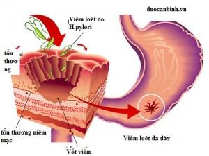 loét dạ dày-hành tá tràng