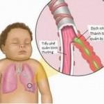 trị bệnh viêm phế quản ở trẻ nhỏ