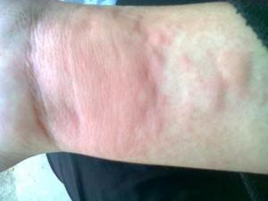 bệnh mề đay do dị ứng hải sản ( minh hoạ)