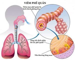 bệnh viêm phế quản