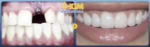 Cấy ghép răng implant giá bao nhiêu tiền là chuẩn nhất và hợp lý nhất hiện nay?