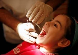 Có nên nhổ răng thừa không, nhổ rồi có biến chứng không?