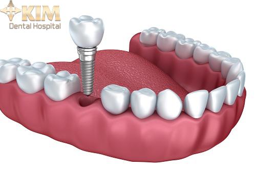 Phẫu thuật trồng răng implant có đau không 1