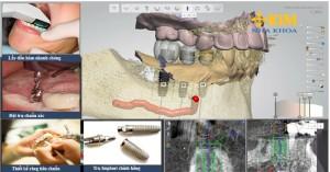 Những điều bạn cần biết về ghép răng implant