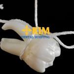Mất răng cấm vĩnh viễn phải làm sao để phục hình lại răng hiệu quả?