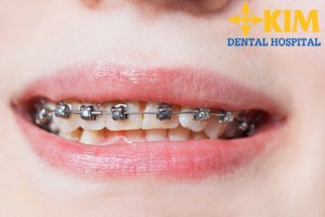 niềng răng 1 hàm