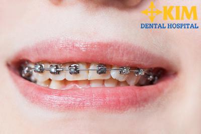 niềng răng invisalign hà nội