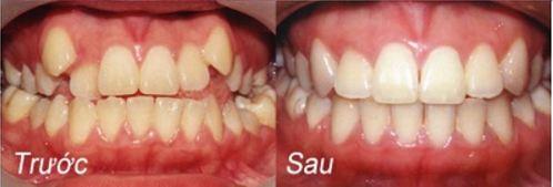 ăn uống khi niệng răng