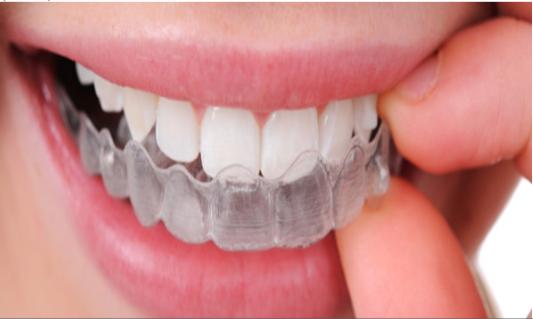 niềng răng như thế nào ?