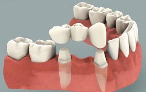 Phương pháp trồng răng giả cố định nào là cách phục hình tốt nhất
