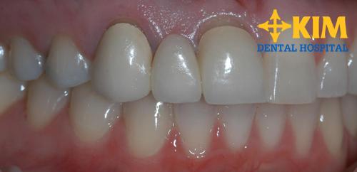 Các loại trồng răng giả cố định - tháo lắp phổ biến nhất hiện nay