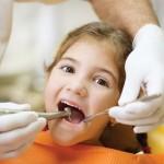Nhổ răng sữa bị sâu cho bé nên hay không, nhổ sớm biến chứng gì?