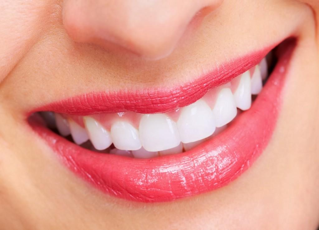 Phương pháp niềng răng invisalign cho hàm răng thẩm mỹ