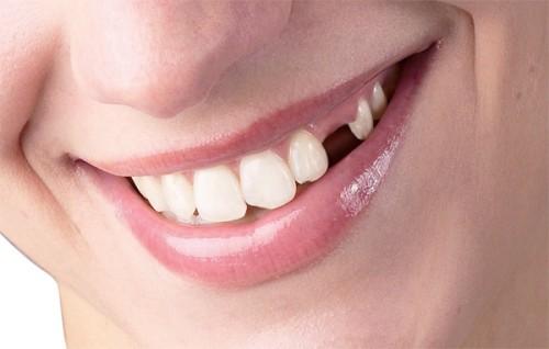 Bị mất răng phải làm sao và nên trồng răng theo cách nào thì tốt nhất1