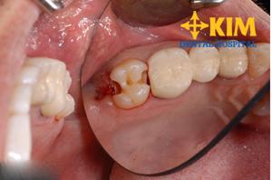 Mất răng số 7 có nên làm răng mới và áp dụng phương pháp nào?1