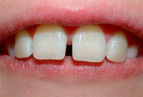 Răng thưa có nên niềng răng không -Chuyên gia giải đáp