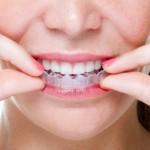 Niềng răng không nhổ răng được xử lý ra sao?