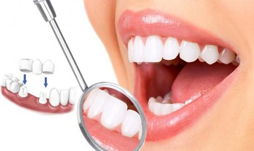 trồng răng sứ mất bao lâu