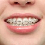 Các loại niềng răng cố định được sử dụng nhiều nhất?