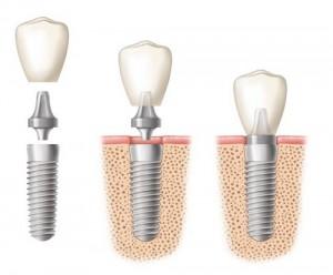 Phương pháp làm răng giả vĩnh viễn implant mới nhất hiện nay