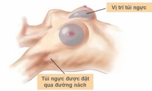 Làm sao để giải quyết lo lắng nâng ngực có để lại sẹo không?