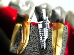 Giải đáp thắc mắc cấy ghép răng implant là gì? – Dành cho người mất răng