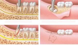 Những BIẾN CHỨNG sau khi nhổ răng KHÔN và cách điều trị