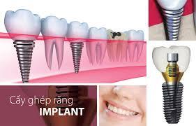 Những tiêu chí đánh giá địa chỉ trồng răng Implant ở đâu tốt?