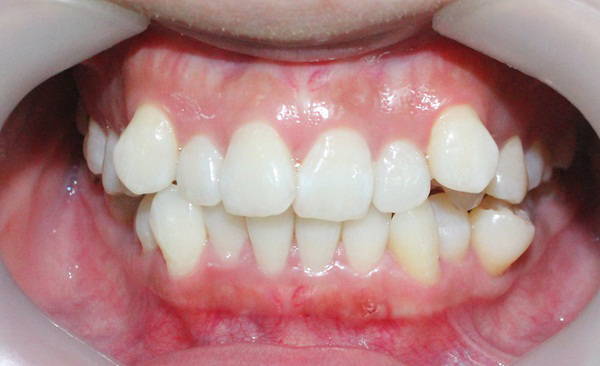 chỉnh răng mọc lệch 1