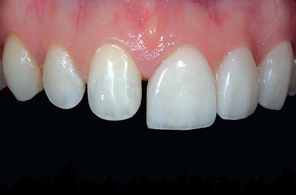 Răng mọc lệch niềng được thì răng thưa có niềng được không?1