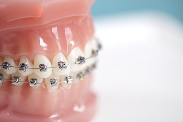Cách rút ngắn thời gian niềng răng thưa an toàn hiệu quả vẫn không thay đổi 1