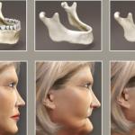 Tiêu xương răng và những điều cần biết