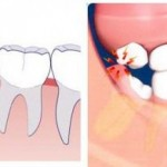 Mọc răng khôn đau trong bao lâu