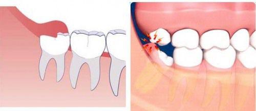 răng khôn mọc
