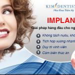 Cấy ghép răng implant giá bao nhiêu là chuẩn nhất 2017