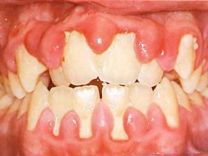 Chăm sóc nha chu để bảo vệ răng miệng chắc khỏe