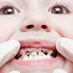 Lấy tủy răng ở trẻ em thực hiện sau được không