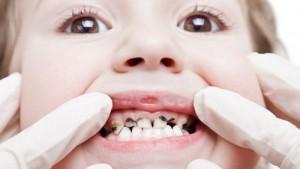 Điều trị viêm tủy răng ở trẻ em