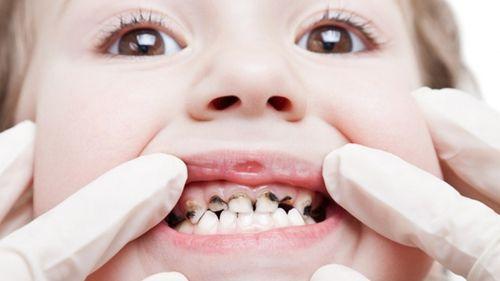 lấy tủy răng ở trẻ em
