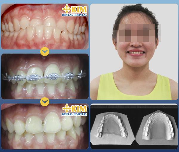 30 tuổi có niềng răng được không có nguy hiểm không 2