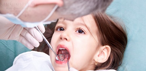 Niềng răng móm bao nhiêu tiền để có được hàm răng đẹp 1