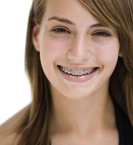 30 tuổi có niềng răng được không có nguy hiểm không 1
