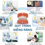 Quy trình niềng răng móm diễn ra trong 6 bước cơ bản