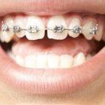 Danh sách trung tâm niềng răng tại Bình Thạnh nổi tiếng hiện nay
