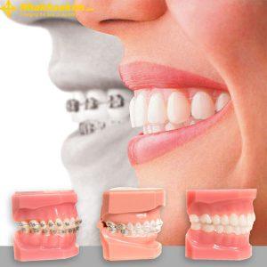 Niềng răng hô tại KIM Hospital khách hàng sẽ được trải nghiệm các dịch vụ sau