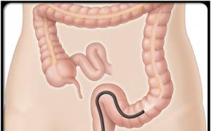 Nội soi dạ dày mất bao lâu -Bác sỹ chuyên gia giải đáp