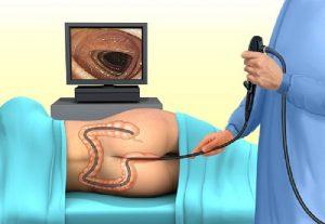 Các bước chuẩn bị nội soi đại tràng tại đa khoa Pacific