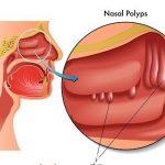 Mách bạn cách điều trị Polyp mũi an toàn hiệu quả nhất hiện nay