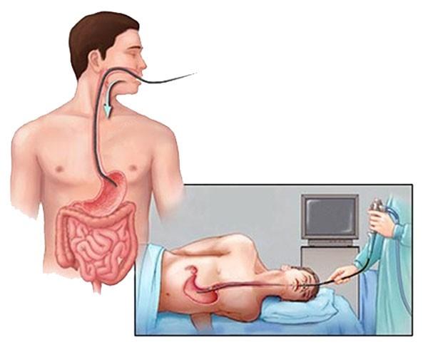 Nội soi dạ dày có đau không, có ảnh hưởng gì không? 1